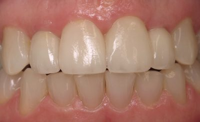 Smile Gallery - After Treatment - Beverly Albrecht