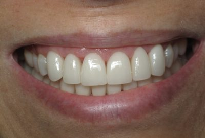 Smile Gallery - After Treatment - J. Stewart