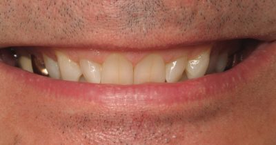 Smile Gallery - Before Treatment - Jerry Banks