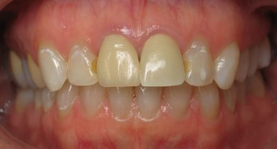 Smile Gallery - Before Treatment - Mary Capps