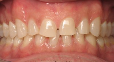 Smile Gallery - Before Treatment - Ron Moore