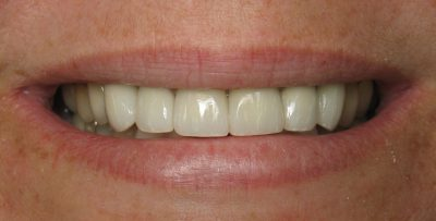 Smile Gallery - After Treatment - Crowns – Alice