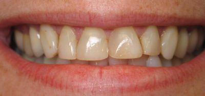 Smile Gallery - Before Treatment - Crowns – Alice