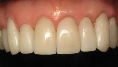 Smile Gallery - After Treatment - Veneers – B. Hannum