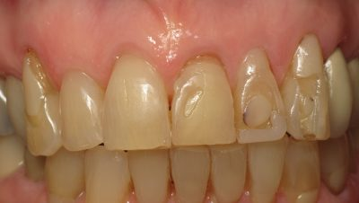 Smile Gallery - Before Treatment - Veneers – B. Hannum