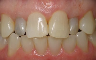Smile Gallery - Before Treatment - Crowns – Beverly