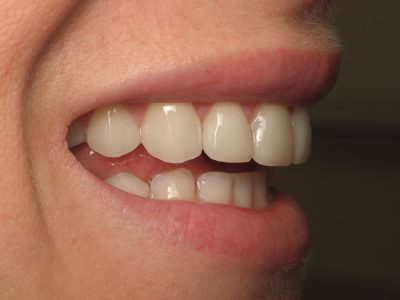 Smile Gallery - After Treatment - Veneers – Carolyn