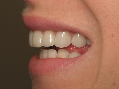 Smile Gallery - After Treatment - Carolyn Rankin