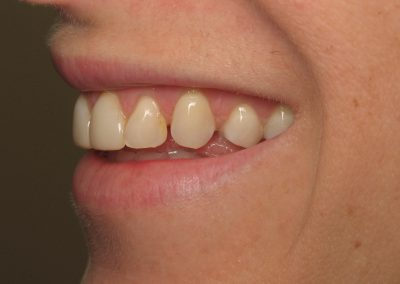 Smile Gallery - Before Treatment - Veneers – Carolyn