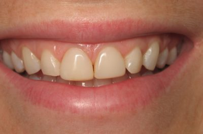 Smile Gallery - Before Treatment - Carolyn Rankin