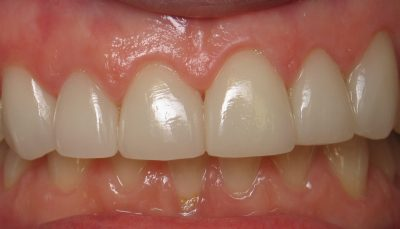 Smile Gallery - After Treatment - Veneers – Cindy
