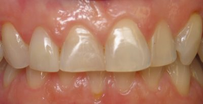 Smile Gallery - Before Treatment - Veneers – Cindy