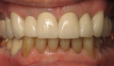 Smile Gallery - After Treatment - Full mouth reconstruction – H. Lerner