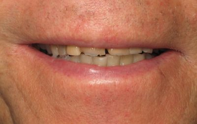 Smile Gallery - Before Treatment - Full mouth reconstruction – H. Lerner