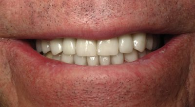 Smile Gallery - After Treatment - Crowns – J. Lonetti