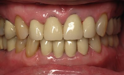Smile Gallery - Before Treatment - J. Lonetti