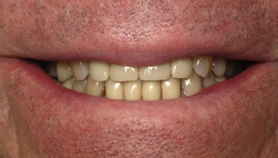 Smile Gallery - Before Treatment - Crowns – J. Lonetti