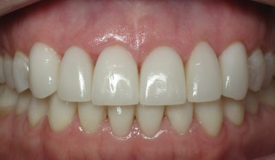 Smile Gallery - After Treatment - Full mouth reconstruction – J. Stewart