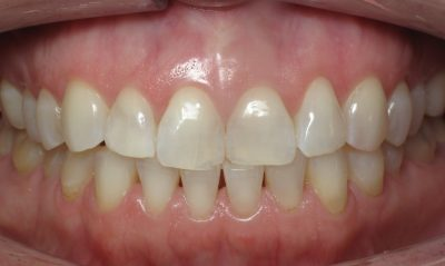 Smile Gallery - Before Treatment - J. Stewart