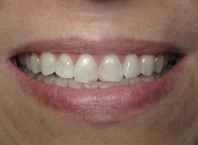 Smile Gallery - Before Treatment - Full mouth reconstruction – J. Stewart