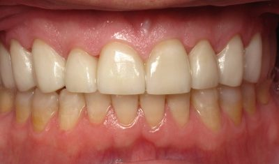 Smile Gallery - After Treatment - Crowns – J. Williams