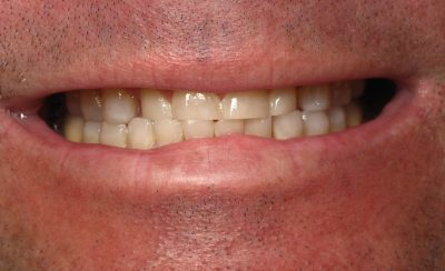 Smile Gallery - Before Treatment - Crowns – J. Williams