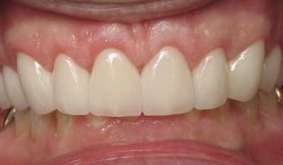 Smile Gallery - After Treatment - Veneers – Jerry