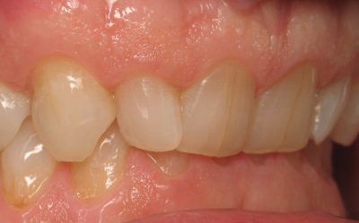 Smile Gallery - Before Treatment - Veneers – Jerry