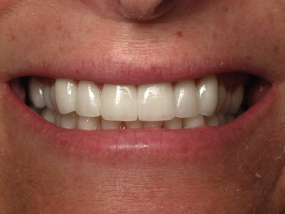 Smile Gallery - After Treatment - Veneers – Leah