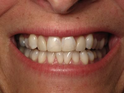 Smile Gallery - Before Treatment - Veneers – Leah