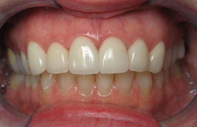 Smile Gallery - After Treatment - Crowns – Mary