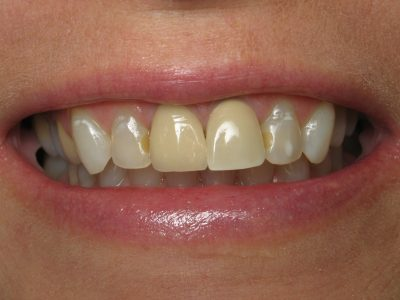 Smile Gallery - Before Treatment - Crowns – Mary