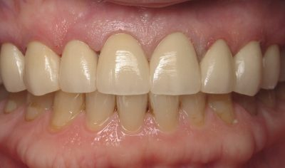 Smile Gallery - After Treatment - Crowns – Nancy