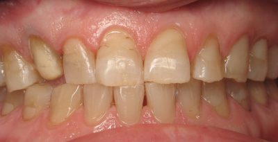 Smile Gallery - Before Treatment - Crowns – Nancy