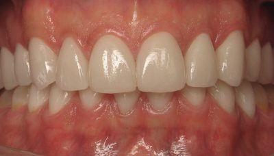 Smile Gallery - After Treatment - Full mouth reconstruction – Ron