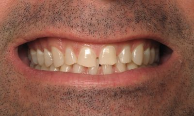 Smile Gallery - Before Treatment - Full mouth reconstruction – Ron