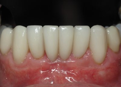 Smile Gallery - After Treatment - S. Ryan