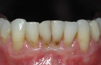 Smile Gallery - Before Treatment - Crowns – S. Ryan