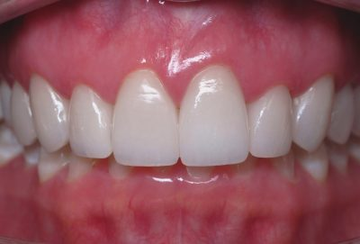 Smile Gallery - After Treatment - Tracy Vap