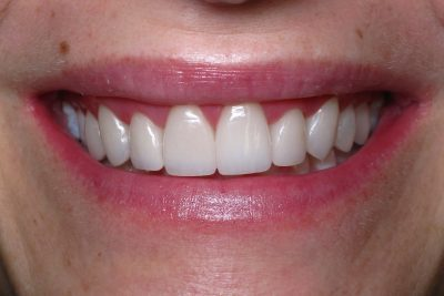 Smile Gallery - After Treatment - Veneers – Tracy