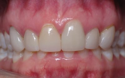 Smile Gallery - Before Treatment - Tracy Vap
