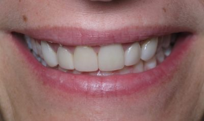Smile Gallery - Before Treatment - Veneers – Tracy