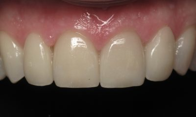 Smile Gallery - After Treatment - Veneers – Weston