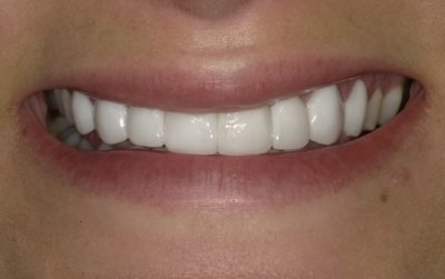 Smile Gallery - After Treatment - Veneers