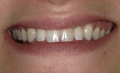 Smile Gallery - Before Treatment - Veneers